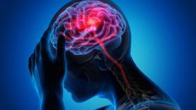 Doença Vascular Cerebral e Covid-19: apenas um em cada cinco especialistas afirmam que doentes têm tratamento habitual