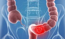 Sociedade Portuguesa de Gastrenterologia e Europacolon juntas pelo diagnóstico precoce do cancro digestivo