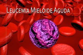 21 de Abril: Dia Mundial de Sensibilização para a Leucemia Mieloide Aguda